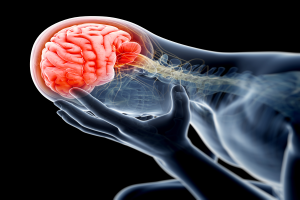 What are Some Common Brain Injury Accidents